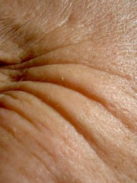 Image of wrinkles in skin