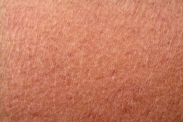 How to Fix an Uneven Skin Tone Naturally
