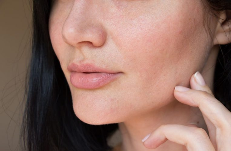 How to Improve Skin Texture on Face - youngerskinguide.com